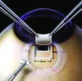 glaucoma6
