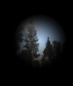 glaucoma_severo
